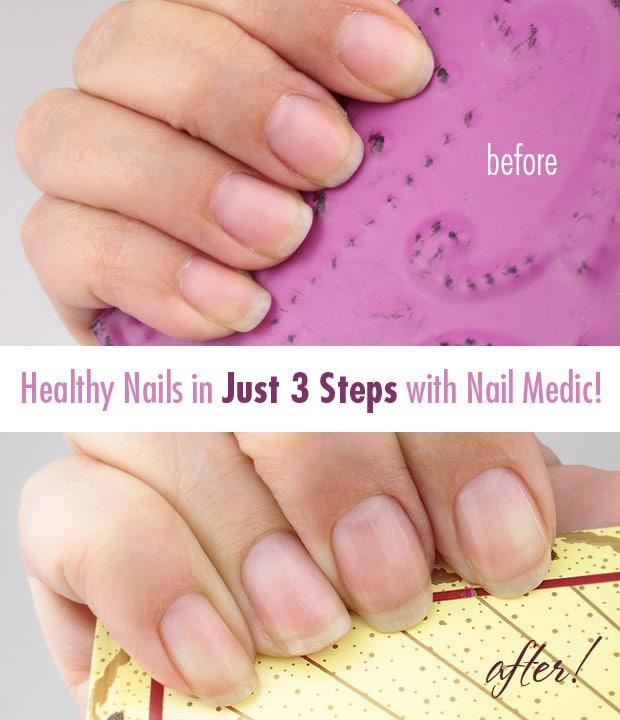 Nail-Medic-3-steps-to-Healthy-nails-11