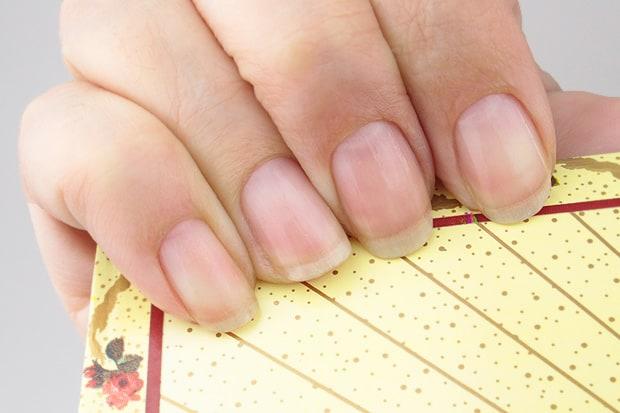 Nail-Medic-3-steps-to-Healthy-nails-after-pic-9
