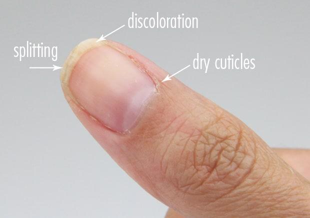 Nail-Medic-3-steps-to-Healthy-nails-before-pic-4