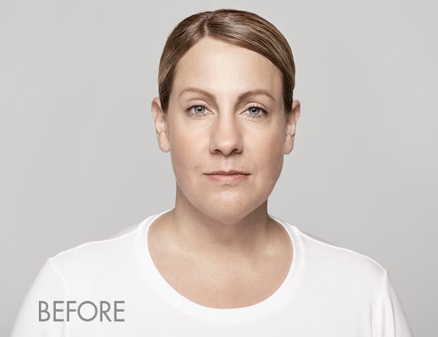 Restylane-before-photo