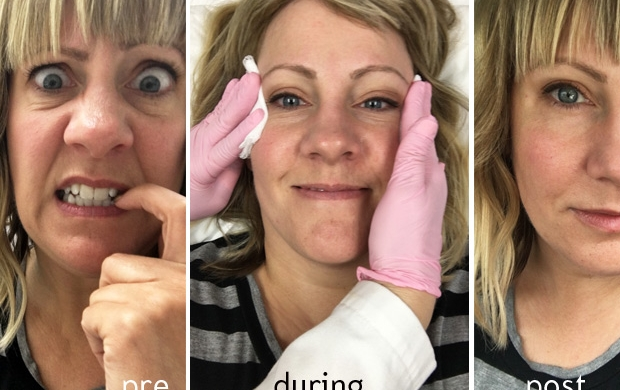 I Got Injectables in My Face and Here's What Happened: part two