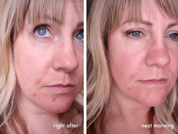 Vampire Facial after photo I Tried Microneedling (aka The Vampire Facial)   Would I Do It Again?