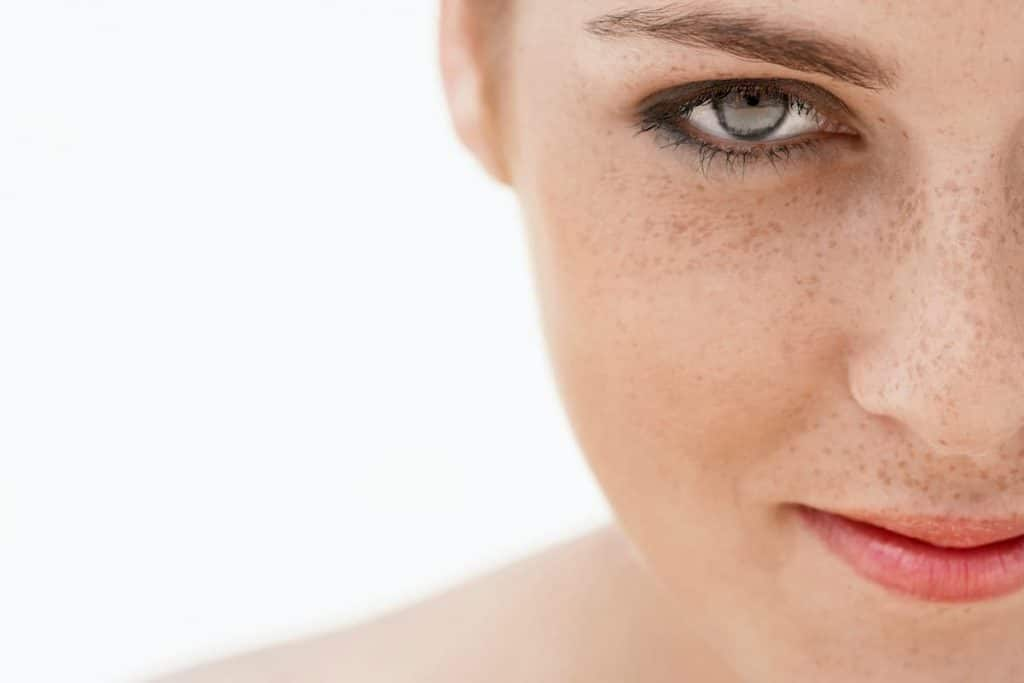 woman with freckles on her face. Used as an example in freckles removal cream post.